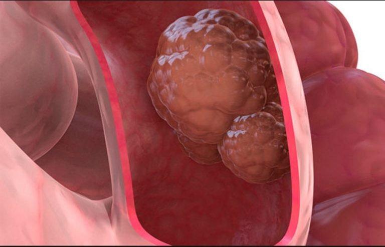 A vastagbélrák 6 tünete, amelyet nem szabad figyelmen kívül hagyni!