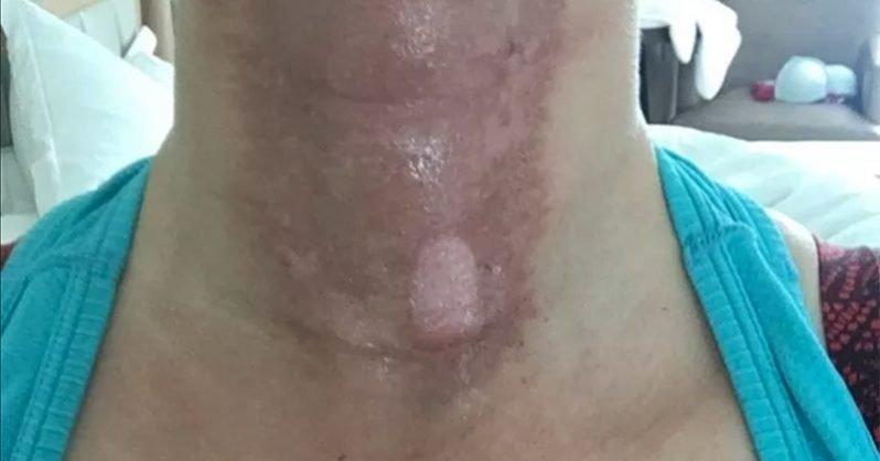 Ennek a nőnek a fájdalmas fotója rávilágít arra, hogy miért NE használj illóolajat napozás előtt