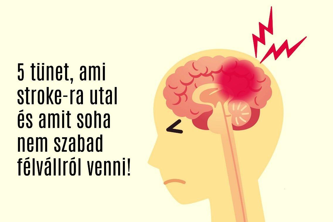 5 tünet, ami stroke-ra utal és amit soha nem szabad félvállról venni!