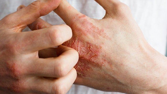 8 TÜNET a kezeden, ami elárulja, hogy milyen betegségben szenvedsz!