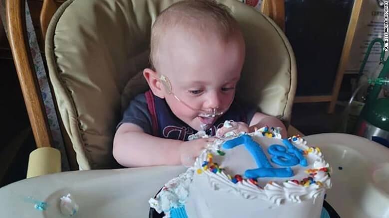 """A világ """"legkoraszülöttebb gyermekének"""" 0% esélyt adtak a túlélésre - Nemrég ünnepelte az 1. születésnapját"""