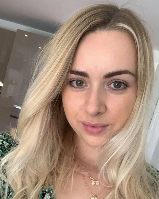Szörnyű trauma érte a menyasszonyt: 6 hét alatt az összes haja kihullott!