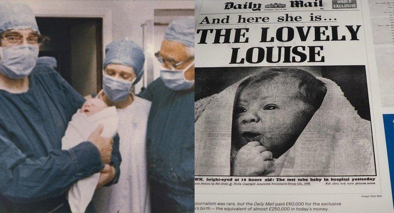42 éve történt a világ első mesterséges megtermékenyítése - Így néz ki most Louise Joy Brown!