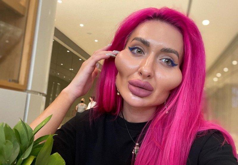 Ő a világ legnagyobb orcájú modellje: megmutatta, hogy nézett ki 21 évesen