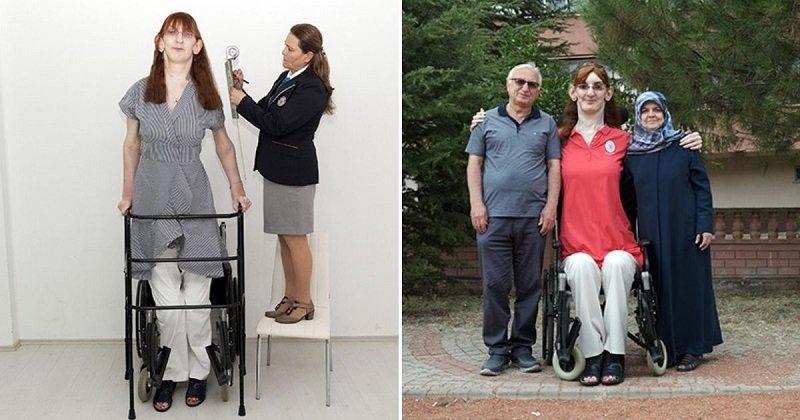 Egy 24 éves török nő lett a világ legmagasabb nője, a maga 215 centijével